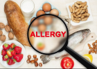 Food Allergies | Recurso educativo 771655